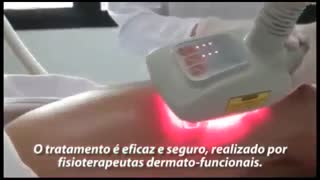 دستگاه لاغری ال پی جی LPG Kuma Shape - دستگاه LPG