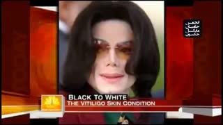 آیا مایکل جکسون واقعا تغییر جنسیت داد؟ (دلیل تغییر رنگ پوست مایکل جکسون)