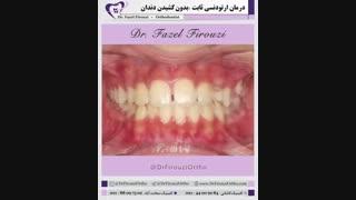 ارتودنسی بدون کشیدن دندان | دکتر فاضل فیروزی