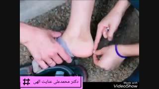 عوارض کفش نامناسب