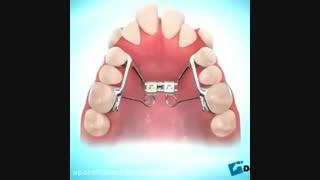 ارتودنسی دندان-دکترمجیدقیاسی دندانپزشک زیبایی درمشهد