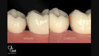پرکردن دندان با مواد سفید خوبه یا سیاه