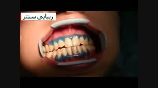 سفید کردن دندان یا بلیچینگ دندان با ژل - دستگاه پیشرفته - زیبایی سنتر
