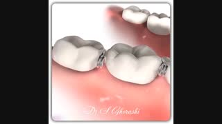 جداکننده دندان | دکتر سعید قریشی