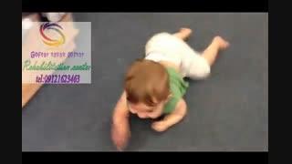 تنها راه پیشگیری از تولد کودکان فلج مغزی