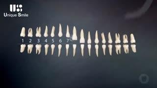 اسامی دندان ها | دکتر لیلا عطایی