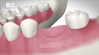 کشیدن دندان | دکتر لیلا عطایی