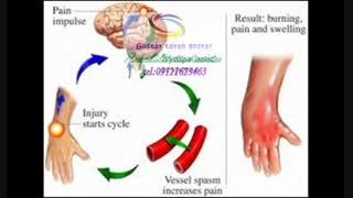 تخصصی ترین کار درمانی در شمال کرج|گفتار توان گستر 09121623463