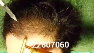 مزوتراپی - 22807060