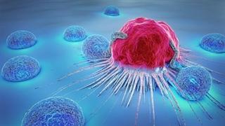 چند باور عمومی اشتباه درباره سرطان