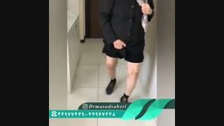 فیلم راه رفتن بیمار بعد از عمل تعویض مفصل زانوی راست