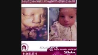 تصاویر سونوگرافی جنین  و بعد از تولد را ببنید